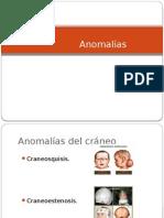 Anomalias