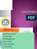Ppt Arrhythmia