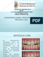 Consideraciones Periodontales en Prótesis Fija