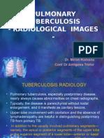 Pulmonary Tb Radiology