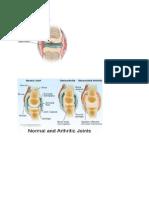Rheumatoid Arthritis (Lo)