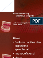 Acute Necrotizing Ulcerative Gingivitis