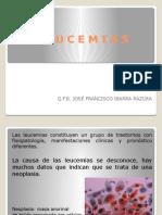 (1) LEUCEMIAS, GENERALIDADES