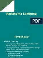 Karsinoma Lambung