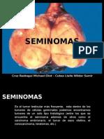 SEMINOMAS