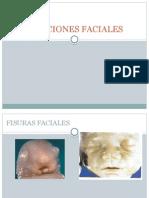 ALTERACIONES-FACIALES