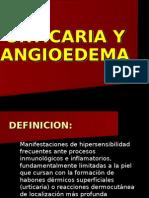 4.- Urticaria y Angioedema