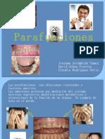 parafunciones en oclusion