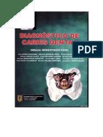 Libro Dix de Caries Dental