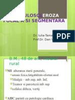 GLOMERULOSCLEROZA FOCAL A SI SEGMENTARA.pptx-.pptx