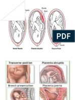 Abnormal Placenta