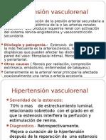 Presentación1 HTA