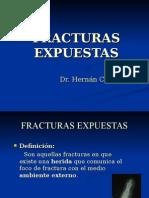 Fx Exp y Politrauma