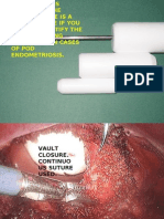 Total Laparoscopic Hysterectomy Part6