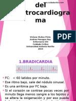 electrocardiogramaanormal