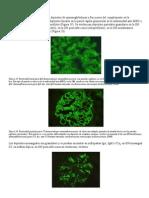 Patrones Inmunopatológicos