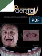 implantes dentales 2013
