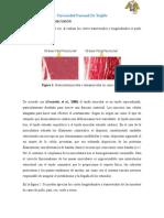 VISUALIZACION MICROSCOPICA EN DIFERENTES TIPOS DE CARNE