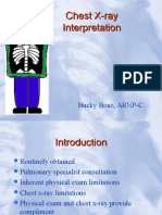 Chest X-ray.ppt