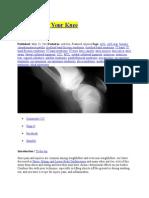So, You Hurt Your Knee & Medial Gastrocnemius Strain