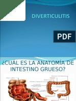 Diverticulitis