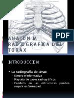 Anatomia Radiografica Del Torax