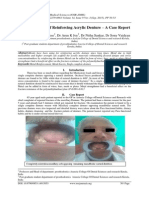 A Novel Method of Reinforcing Acrylic Denture – A Case Report