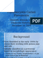 Pneumonitis akibat Pneumocystis carinii