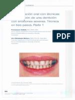 rehabilitacion oral en tres pasos