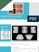 Denticion Mixta. ortodoncia.