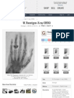 The First Published X-ray Photograph, Showing the Left Hand of Albert Von Kölliker, As Reproduced in William Roentgen's Paper Announcing His Accidental Discovery of X-rays