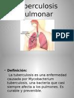 Tuberculosis Pulmonar presentaciòn