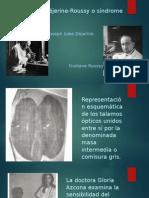 El Síndrome de Déjerine Roussy o Síndrome Talámico