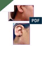 patologias de la piel