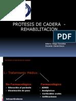 protesis de cadera