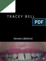 Cosmetic Dentistry Portfolio