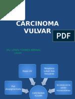 Carcinoma Vulvar