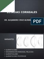 Ectasias corneales
