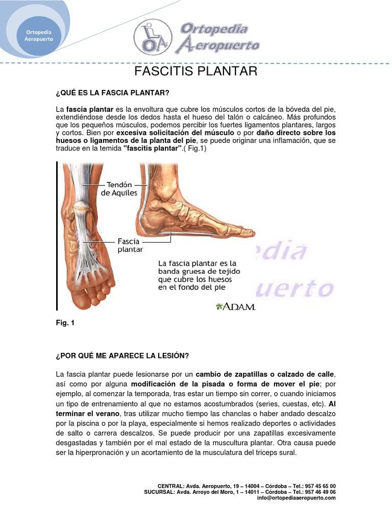 Ortopedia_Aeropuerto_Fascitis_Plantar.pdf