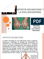 Artritis Reumatoide y la Esclerodermia.pptx