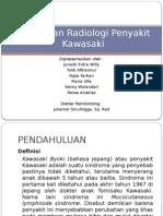 Gambaran Radiologi Penyakit Kawasaki
