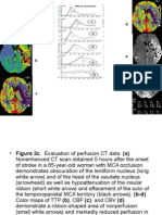 CT Perfusion.ppt