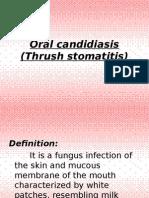 2. Oral Candidiasis Thrush Stomatitis