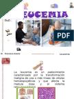 Leucemia Exposicion Dr. Averos
