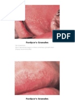 various Lesions of oral cavity