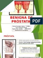 Hiperplasia Benigna Prostatica