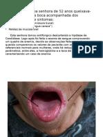 Caso Anemia