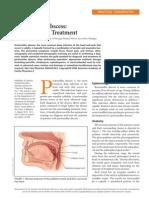 Peritonsillar Abscess Drainage