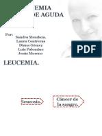 LEUCEMIA MIOLOIDE AGUDA