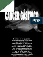 CA Gastrico